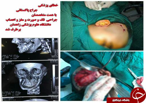 برطرف شدن خطای پزشکی جراح پاکستانی + عکس