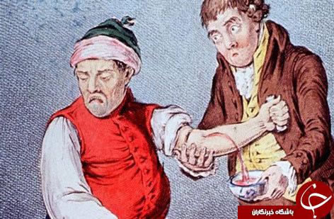 هولناک ترین و عجیب ترین اعمال پزشکی
