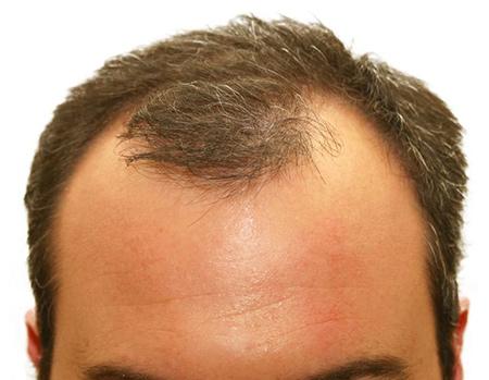 رفع طاسی و رشد مجدد مو با کمک یک محلول مبتنی بر سلولهای بنیادی