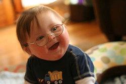 سندروم داون گریبانگیر فرزندان کدام خانوادهها میشود؟