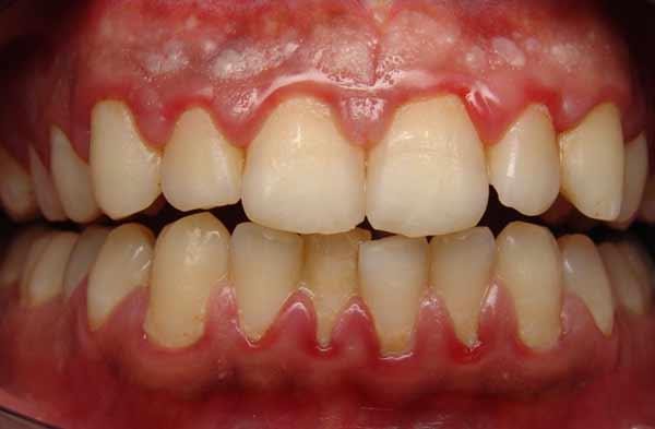 رابطه سلامت دها با سرطانهای ریه و گوارش