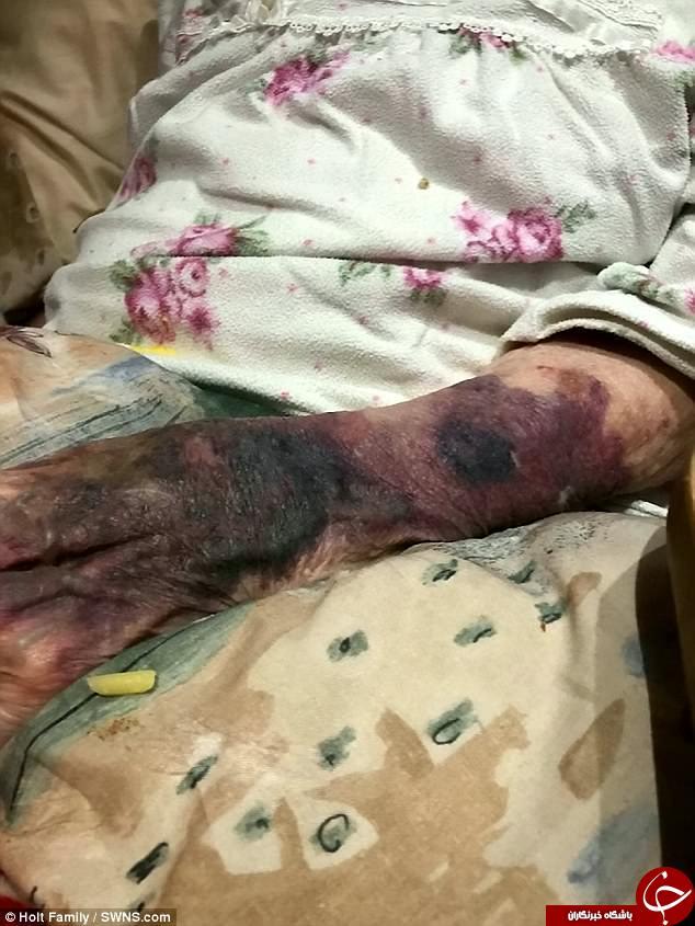 بلای وحشتناکی که یک پرستار به سر زن سالمند آورد+تصاویر