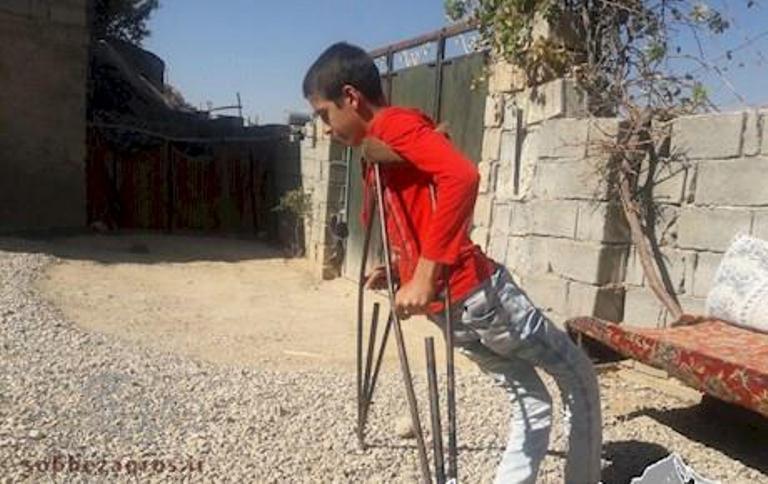 قصه غم انگیز شگفت انگیز ترین معلول دنیا/ شاهین، درآرزوی پرواز