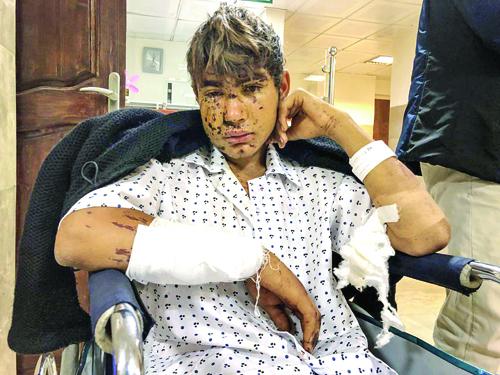 پسر 16 ساله، از زلزله گریخت و اسیر مین شد+عکس