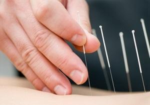 استفاده از لیزر طب سوزنی در درمان اختلالات روحی و روانی / استفاده از لیزر در طب سوزنی برای درمان چاقی