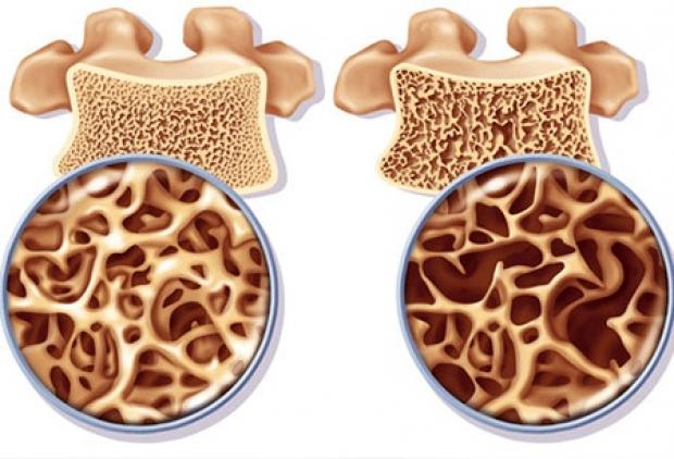 چند روش طلایی برای کاهش احتمال ابتلا به پوکی استخوان