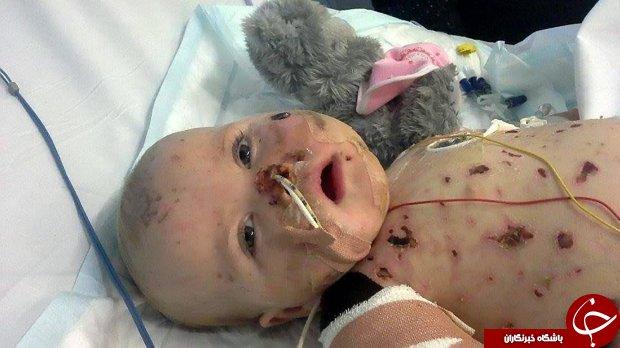 ویدئویی فوقالعاده از زندگی دختربچهای که از مرگ جان سالم به در برده است