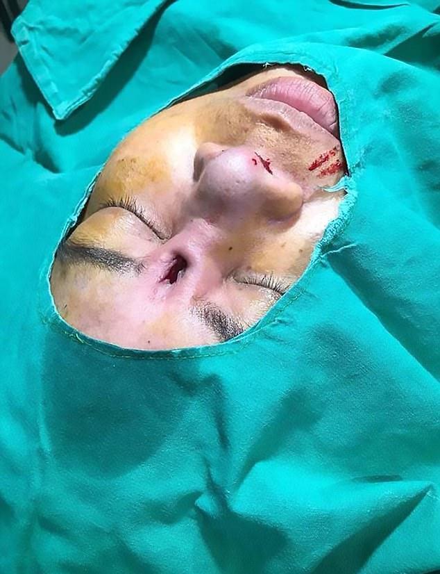 1-حفرهای عمیق درصورت؛ نتیجه انجام عمل جراحی بینی ارزان قیمت دراین زن+ تصاویر2-ترسناکترین عارضه جانبی جراحی زیبایی بینی درصورت این زن+ تصاویر