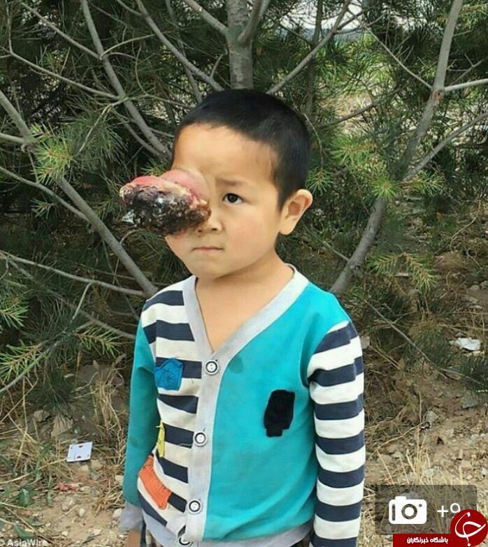تومور وحشتناک و عجیب چشم پسر ۶ ساله + تصاویر