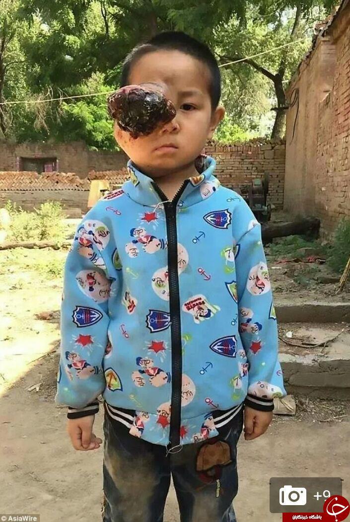 تومور عجیب و وحشتناک چشم راست یک پسر 6 ساله+ تصاویر