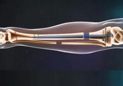 فیلمی جالب از نحوهی عمل جراحی افزایش قد!