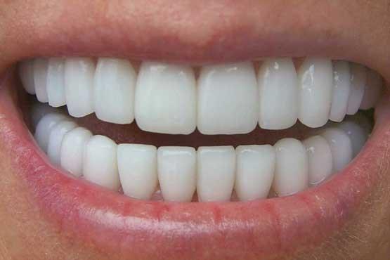 عواملی پنهان که باعث دندان درد می شوند
