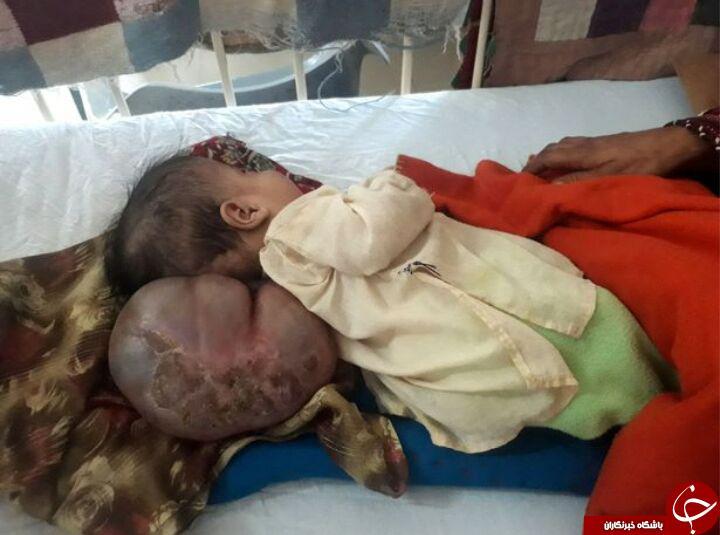 بیماری عجیب کودک پاکستانی! تصاویر