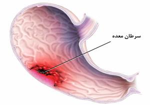 سرطان معده شایع ترین سرطان در همدان