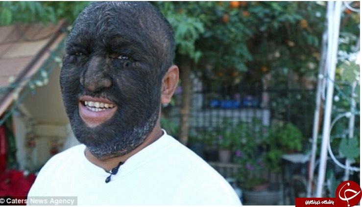 «مرد گرگی» که ۹۸ درصد بدنش را مو پوشانده است+ تصاویر