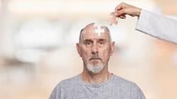 10 نشانه هشدار دهنده آلزایمر که نباید نادیده بگیرید