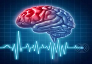 زمان طلایی بیماران سکته مغزی برای برگشت عضلات چقدر است؟