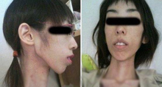 شکنجه عجیب دختر جوان ژاپنی با کاهش وزن +عکس