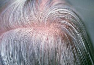 چرا گرد سپیدی روی موها مینشیند؟
