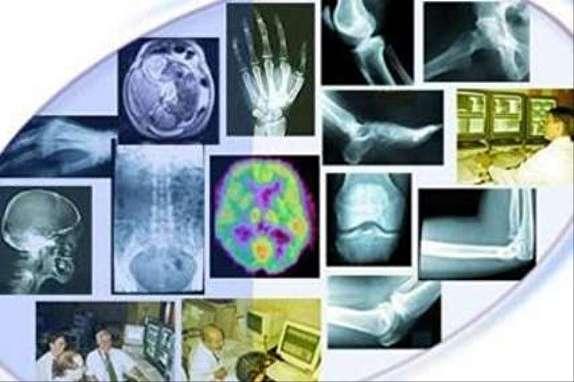 کمبود رادیولوژیست در مناطق محروم، مجوز سونوگرافی توسط متخصصان زنان