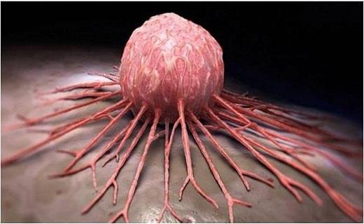 خطر سرطان با این خوراکیها/ ادویهای با طعم مرگ/ خوراکیهایی برای درمان ویار بارداری/ ترفندهای جالب برای از بین بردن شوری غذا