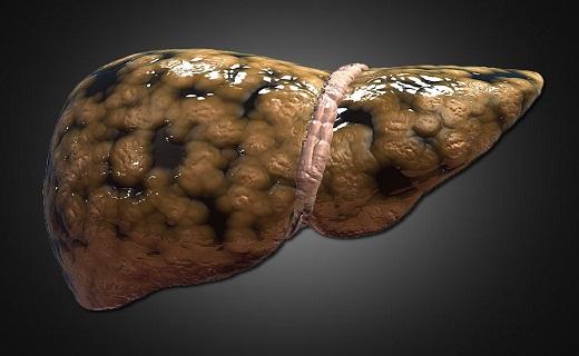 سردردهای طولانی مدت را جدی بگیرید/ راههای رهایی از کبد چرب/ خواص شگفت انگیز گیاه شنبلیله/  دشمن سلول های پوستی را بشناسید