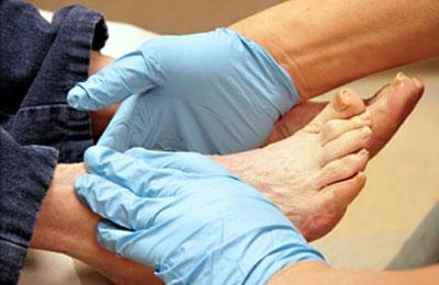نشانههایی در پاها که خبر از بیماری میدهند!