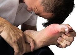 بیماری نقرس چه علائمی دارد؟/ بهترین درمان های طبیعی برای نقرس