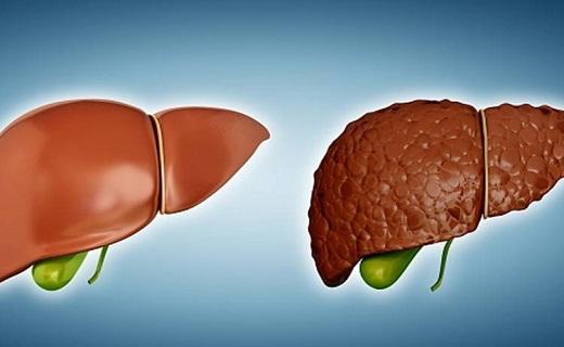 رژیم غذایی برای مهار این بیماری کبدی/ چرا برخی زودتر سردشان میشود/ در مصرف این نوشیدنیها دقت کنید/