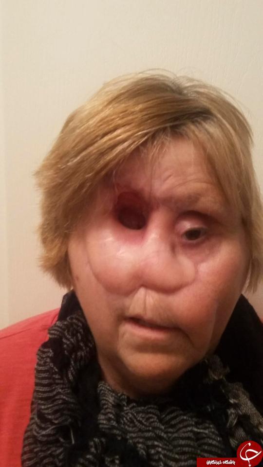 زنی که با چشم خود نفس می کشد+تصاویر