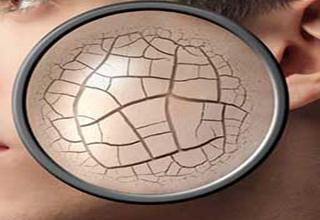 عوارض خطرناک خشکی پوست را دست کم نگیرید!