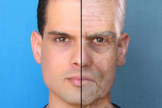 ۸ دلیل پیری زودرس پوست