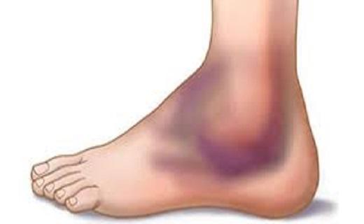 مجله سلامت عوارض و مضرات کفش پاشنه بلند عوارض کفش نامناسب دانستنی های جالب پزشکی خواص گوشت شترمرغ پرورش شترمرغ آیا میدانستید های پزشکی