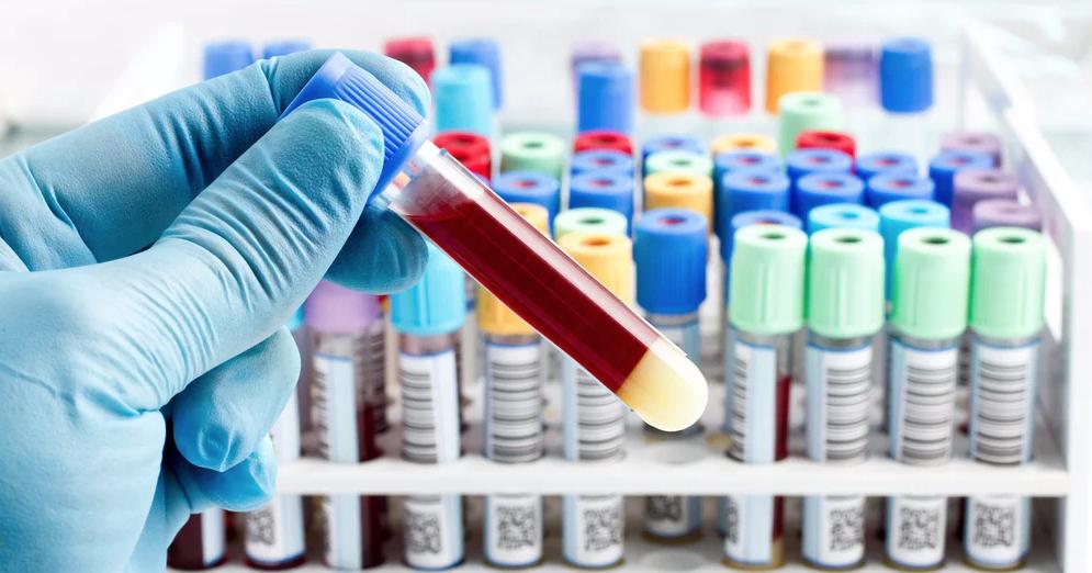 آزمایش خون/ خواندن آزمایش خون