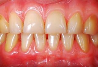 ۵ عادت روزانهای موجب زرد شدن دندانها میشوند