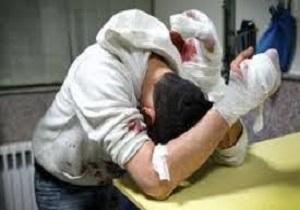 جیندی ویژه چهارشنبهسوری *** کمبود تخت ویژه بیماران سوختگی در کشور/ سالیانه 2500 نفر در اثر سوختگی جان خود را از دست میدهند