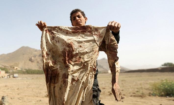 واقعیت تلخی به نام یمن
