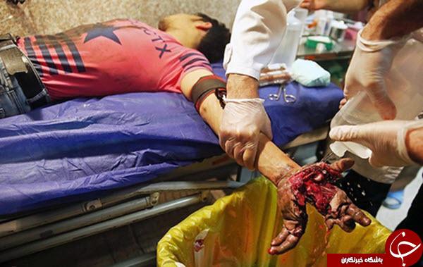 تصاویر دلخراش مصدومان چهارشنبه سوری سالهای گذشته را حتما ببینید