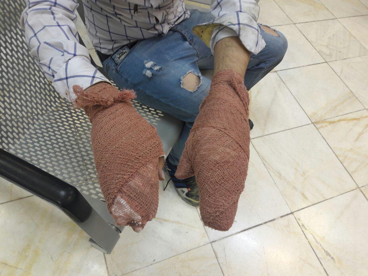 آخرین آمار از قربانیان چهارشنبه سوری/ فوت نوجوان 15 ساله البرزی براثر انفجار مواد محترقه