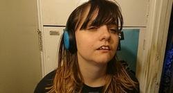 بیماری عجیبی که دختر جوان را تبدیل به زیبای خفته کرد + تصاویر