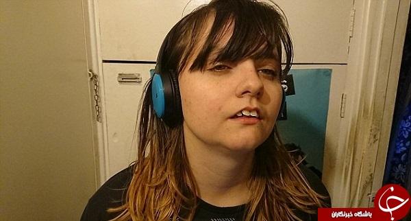 بیماری عجیبی که دختر جوان را تبدیل به زیبای خفته کرده است + تصاویر