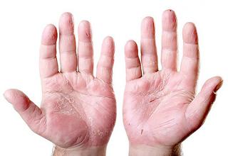بیماریهای که از روی تغییرات دست انسان قابل تشخیص هستند!
