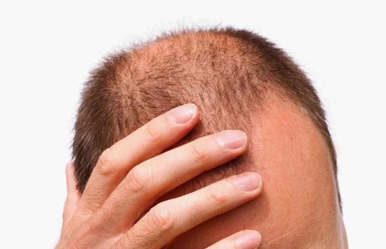 5 رازی که باید درباره مکملهای پوست، مو و ناخن بدانید