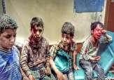 باشگاه خبرنگاران -شیوع دیفتری جان ۶۶ یمنی را گرفت