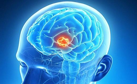 چگونه می توان  از بالا بودن قند خون مطلع شد/ یک نوشیدنی مفید و قدیمی/ نشانه های یک تومور مغزی/ خواص یک چاشنی محبوب