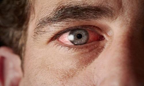 //////////قطرات اشک؛ جدیدترین شیوه شناسایی بیماری پارکینسون//////////////روشی غیر تهاجمی و فوق العاده برای شناسایی بیماری پارکینسون ابداع شد/////////////قطرات اشک شیوه جدید شناسایی خطرناکترین بیماری اعصاب وروان