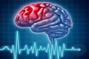 علائم و راهکارهای درمان سکته مغزی چیست؟