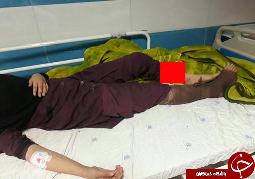 انفجار در مدرسه دخترانه کوهدشت/قطع دست یکی از دانش آموزان   عکس