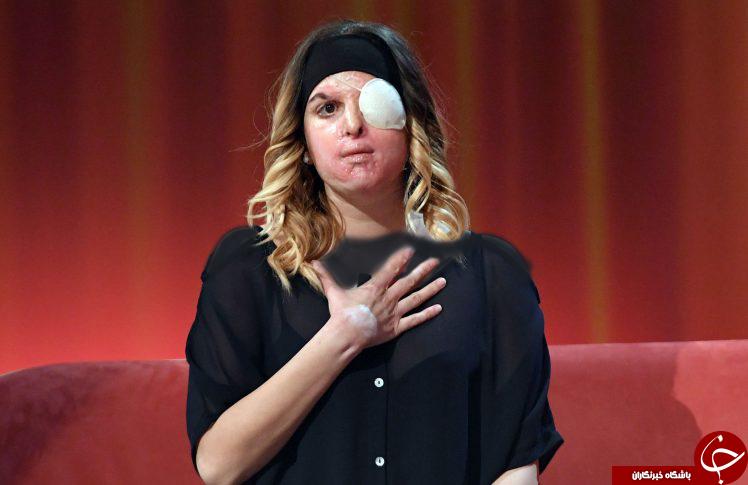 نمایان شدن چهره قربانی حادثه اسیدپاشی در برنامه زنده