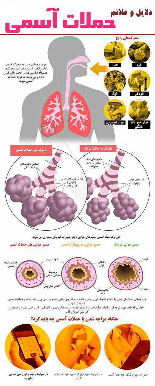 آسم و راهکارهای مقابله با حملات آن+ اینفوگرافی